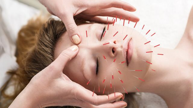 acupuncture-help